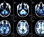 Six panels of an MRI scan.